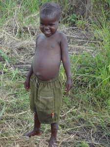 Child with belly full of worms